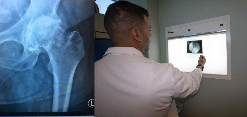Non-surgical management of common orthopedic issues at Orthopedic Spine Care of LI